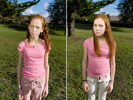 anorexic.jpg. Acclaimed photographer Lauren Greenfield has turned her lens ...